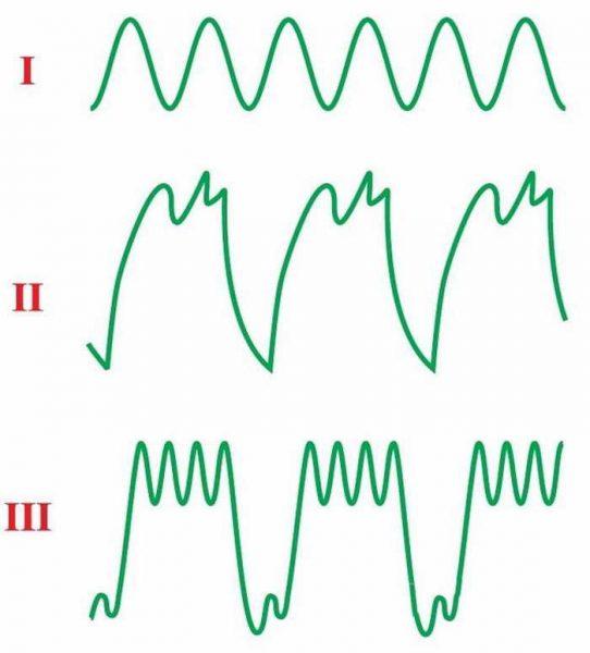 Сигнал осциллографа